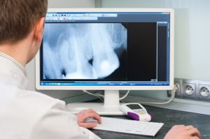 Stomatolog oglądający wyniki prześwietlenia zębów