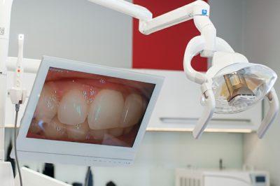 Monitor wyświetlający uzębienie pacjenta