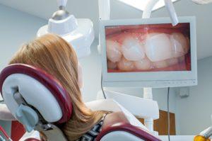 Pacjent oglądający na ekranie swoje uzębienie w powiększeniu