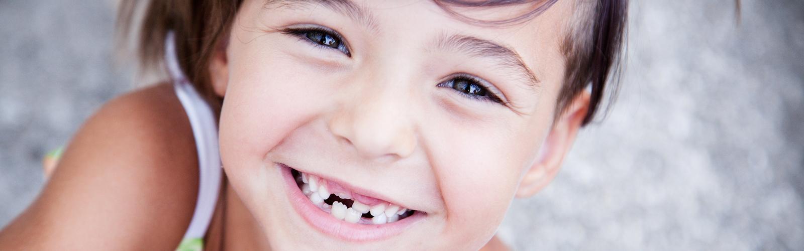 Dziecko z usuniętymi zębami mlecznymi